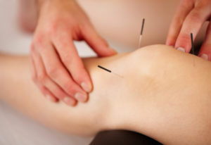 accupuncture-knee-needles-arthritis